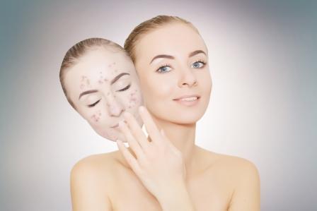 žena odoberá masku s akné