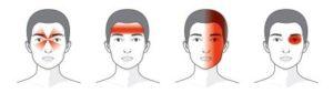 typy bolesti hlavy