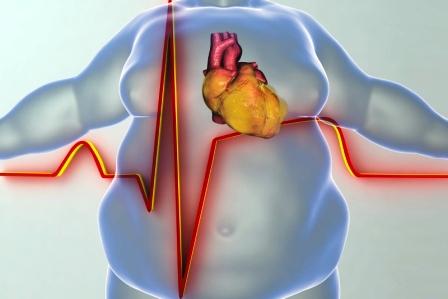 ochorenie srdca u osoby s obezitou pomaha sisak
