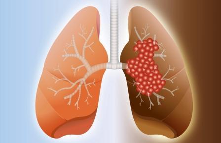 pľúca zdravé a choré, prečistenie pľúc