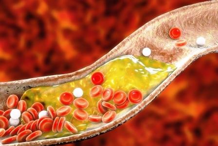 redkovka znizuje cholesterol