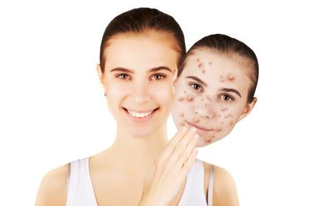tvár so zdravou pokožkou a tvár s škvrnami