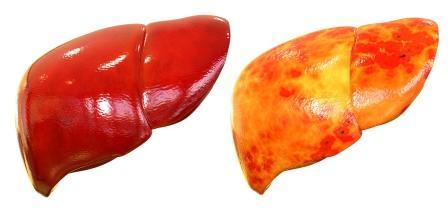 zdravá a poškodená pečeň, detoxikácia pečene